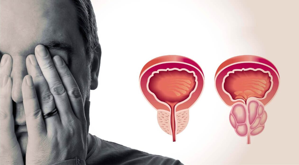 Exacerbation a prosztatitis